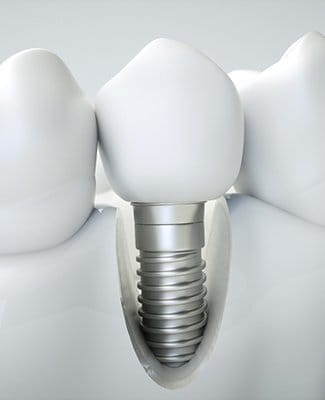 Image showing how dental implants work in Federal Way.