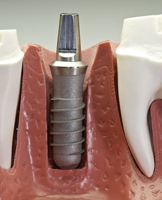 Titanium implant post inserted into a jawbone.