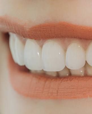 close up of smile with straight white teeth