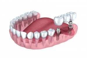dental implants abutments and bridge