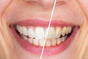 """A comparison of a woman's smile """"before"""" and """"after"""" teeth whitening"""